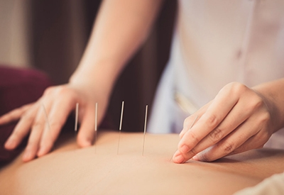 agopuntura - rigenera life - salute - benessere
